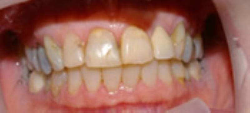 Broken down and discolored teeth before