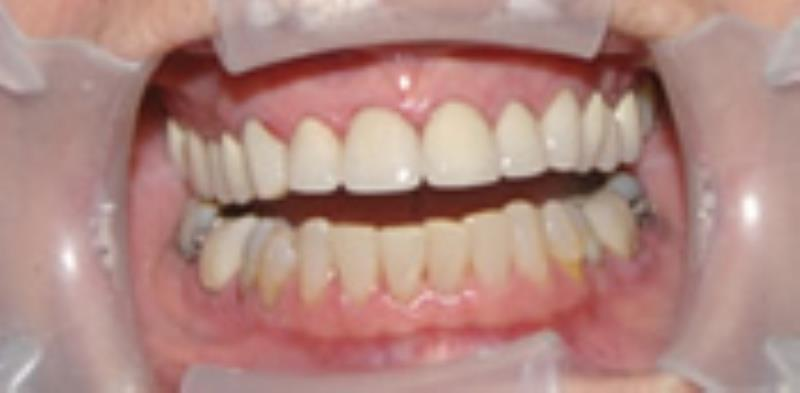 Broken down and discolored teeth after